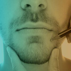La mentoplastia es la cirugía en la cual se busca mejorar la proyección del mentón